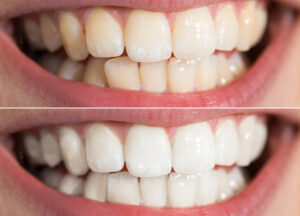 4 Top Natural Ways to Whiten Teeth at Home