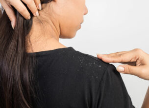 5 Easy Tips for Preventing Dandruff and Flakes