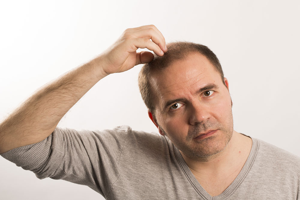 5 Home Remedies to Manage Male Pattern Baldness