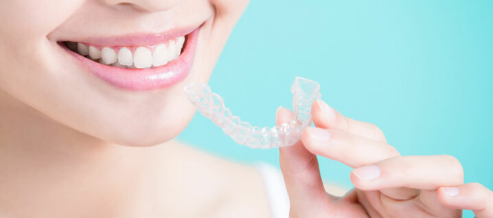 6 Advantages of Clear Aligners
