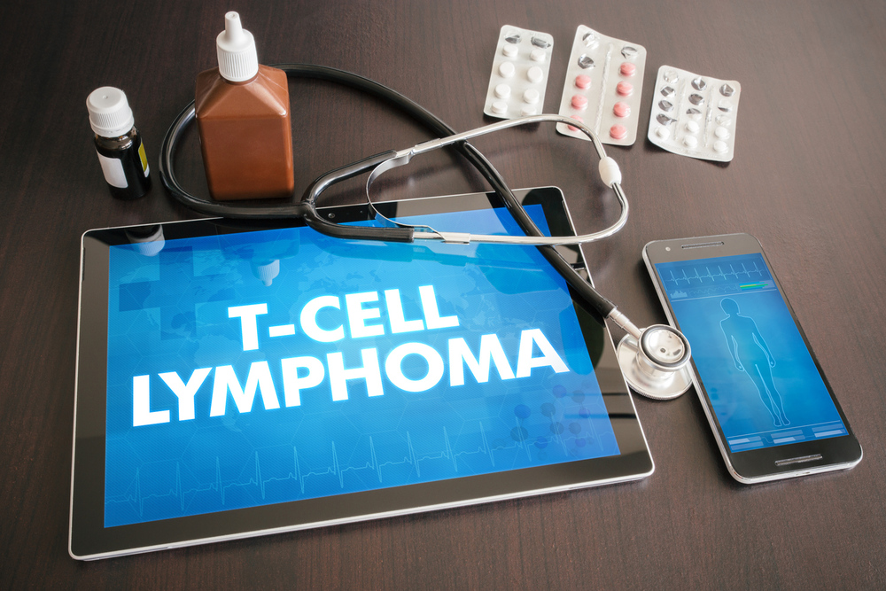 Types of Lymphoma